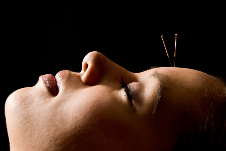 Calming Acupunture Sage Holistic Health